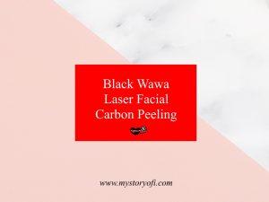 black-wawa-laser-facial-carbon-peeling