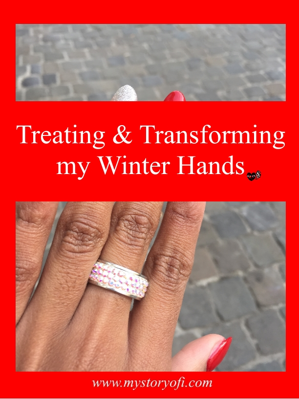 Treating and transforming my Winter  Hands